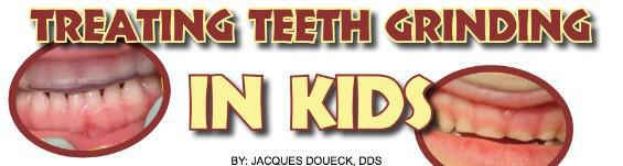 Treating Teeth Grinding in Kids